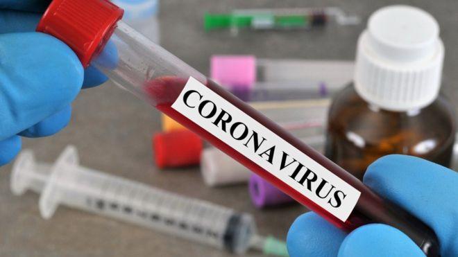 9 وفيات وتسجيل 620 إصابة جديدة بكورونا و1491 حالة تعافٍ